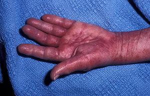 Лечение заболевания амилоидоз