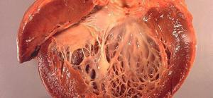 Амилоидоз почек морфологическая характеристика