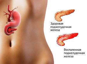 Как унять боль в области поджелудочной железе