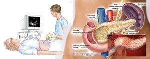 Как лечат острый панкреатит