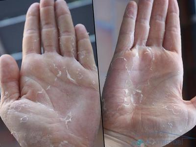 Почему на ладонях слезает кожа у взрослого