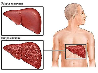 Носитель гепатита с, что это значит