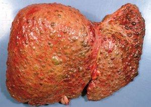 Заболевание печени гепатитом