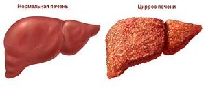 Цирроз печени - тяжелое заболевание.