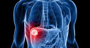Признаки цирроза печени различны на разных стадиях течения этого заболевания.
