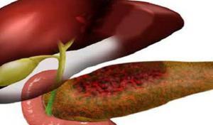 Причины заболевания липоматоза печени