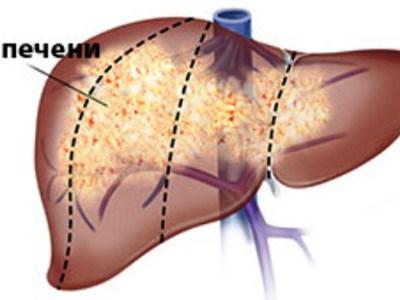 Онкология печени симптомы и признаки болезни