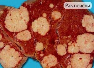 На 4 стадии рака печень вся пронизана метастазами.