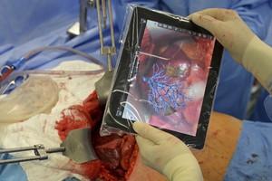 Операция на печени - современные технологии и талант хирурга в действии.