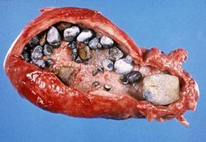 Желчнокаменная болезнь развивается чаще всего в зрелом возрасте.
