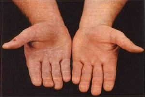 Проблемы с кожей рук из за нехватки витаминов и неправильного ухода