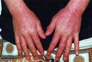 Медицинское описание возможных заболеваний кожного покрова рук