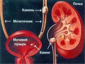 Медицинское описание мочекаменной болезни