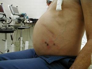 Перечень признаков и симптомов цирроза печени у мужчин