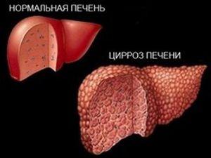 Причины заболевания печени
