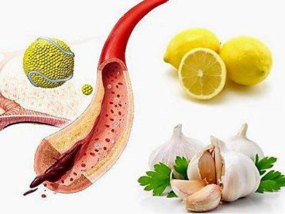 Чистка сосудов от холестерина народными средствами
