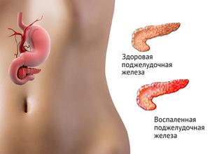 Хороший санаторий для лечения межпозвонковой грыжи