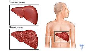 Лекарственные препараты при жировом гепатозе печени