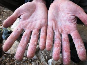 Что надо делать при облизании кожи