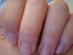 Кожа на пальцах: шелушится, трескается, облазит.