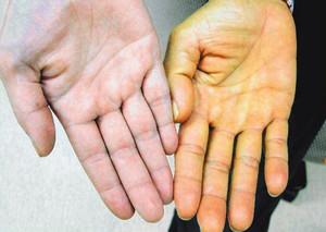 Заболевание печени и поджелудочной железы у ребенка