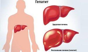 Какие проявляется гепатит