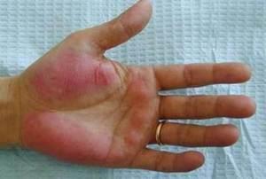 Пурпура - высыпание, которое бывает при заболеваниях печени.