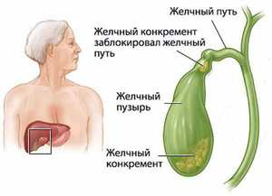 Жкб лечение без операции
