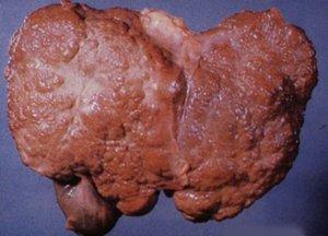 Медицинское описание заболевания цирроза печени