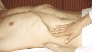 Описание вторичных признаков цирроза печени