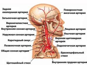 Как проверить состояние сосудов головного мозга, и способы ...