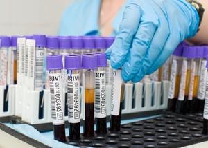 Анализ крови гепатит с в краснодаре