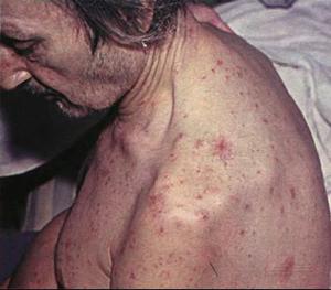 фото с циррозом печени люди